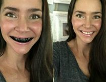 How To Whiten Teeth Naturally With Activated Charcoal