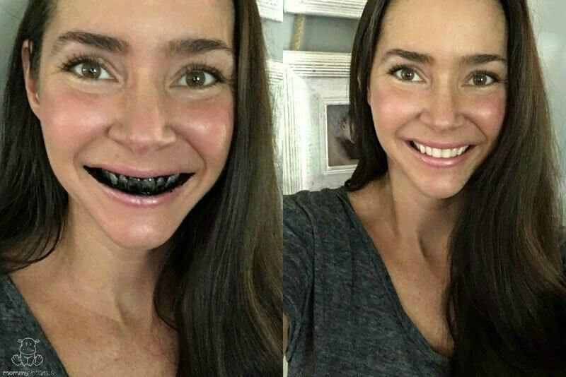 whiten teeth naturally activated charcoal how to