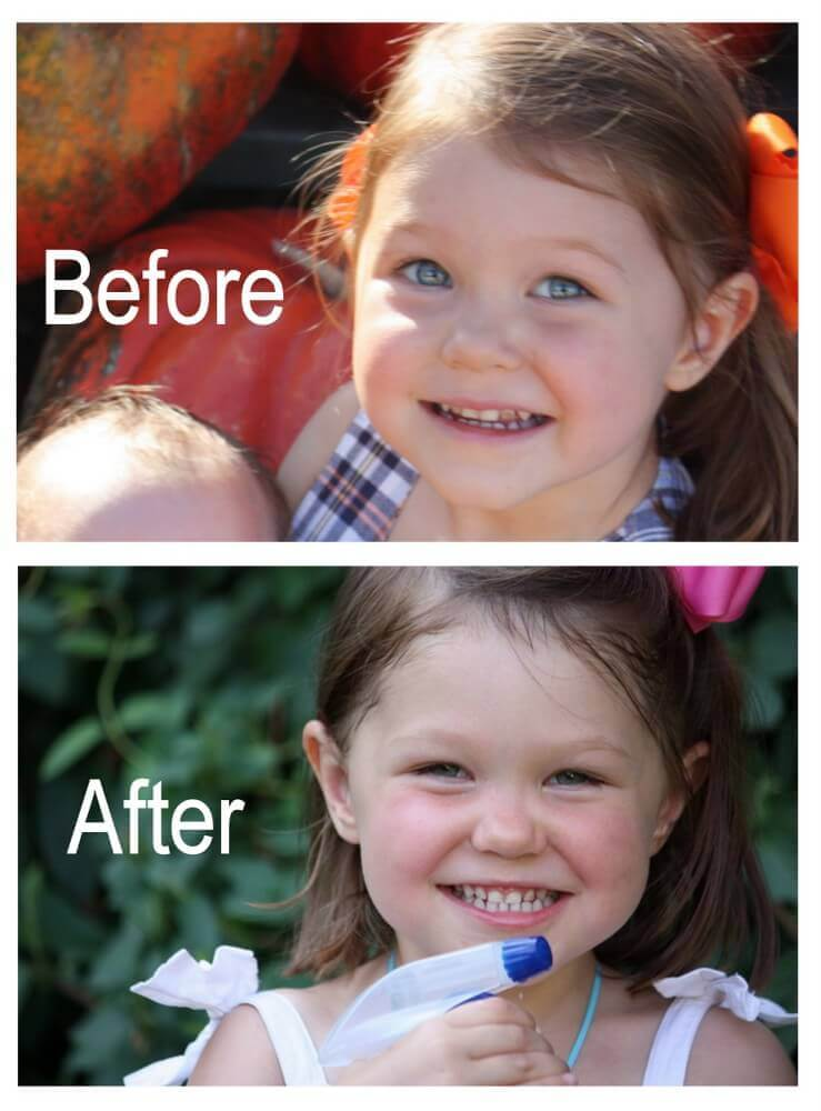 How I Reversed My Daughter's Tooth Decay
