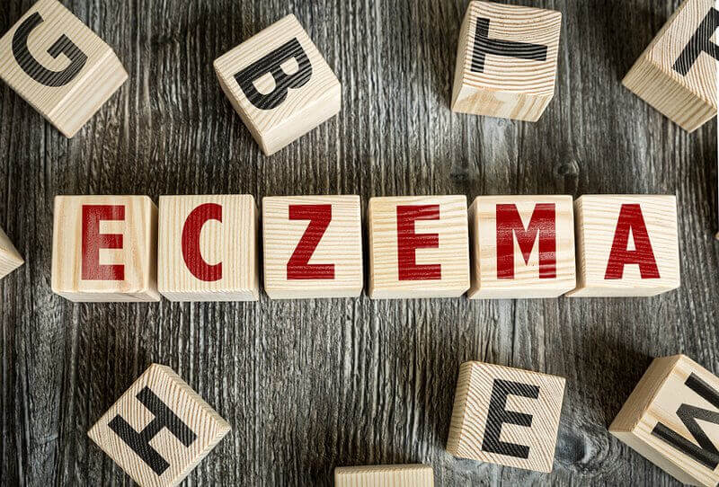 5 Eczema Triggers To Avoid