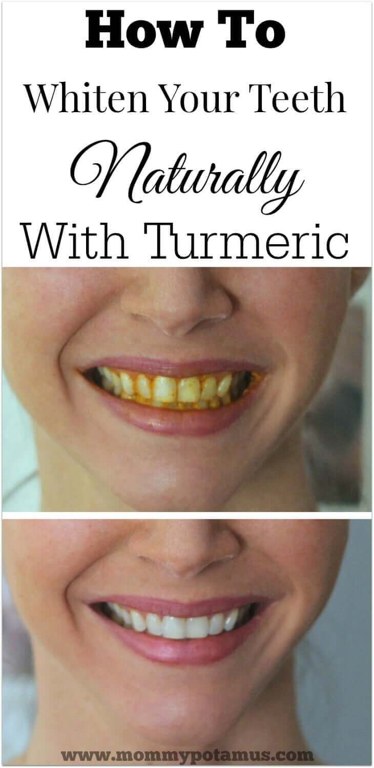 Turmeric Teeth Whitening At Home