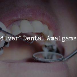 amalgam-fillings