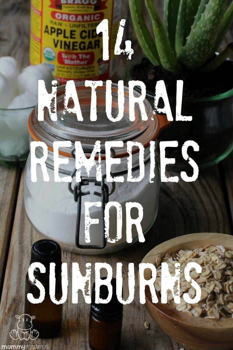 Various natural remedies for sunburn on table
