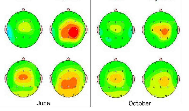 benefits of neurofeedback q EEG brain mapping