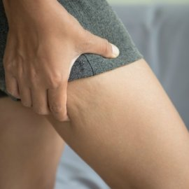 Woman performing pinch test for cellulite